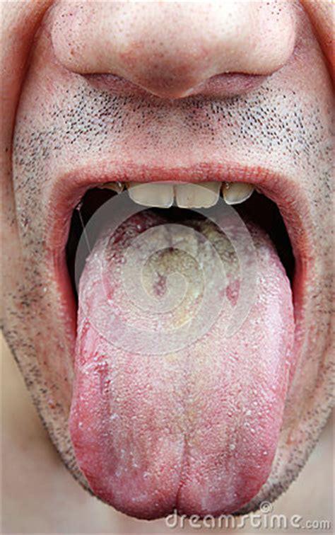 disease tongue stock photo image