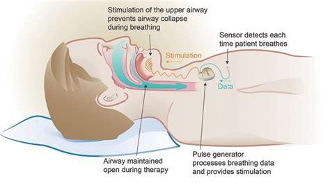 Inspire Surgery for Sleep Apnea | The MetroHealth System