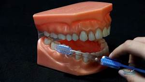 Oshawa Dentist Teeth Brushing Tips