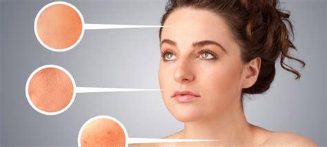 Wanita Dewasa Tidak Haid Tanda Sindrom Ovarium Polikistik Yang Bisa Wanita Sulit