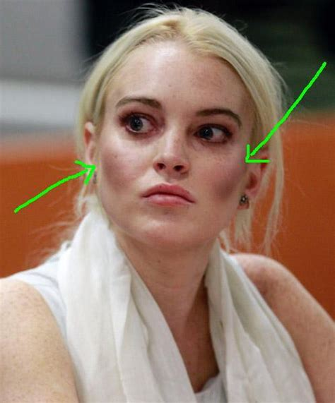 Jesus-make-it-stop...what Happened To Lindsay Lohan's Face