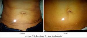 What Is The Exilis