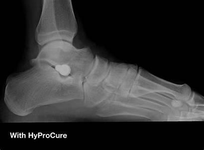 Surgery Hyprocure Foot Flat Feet Reconstructive Ankle