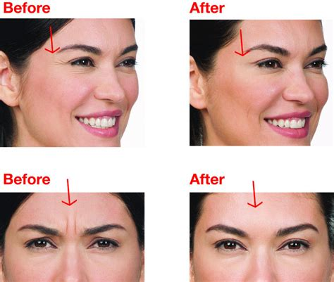 botox nyc  botox midtown dermatology  laser group