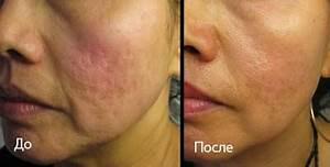 Избавление от морщин в домашних условиях советы косметолога