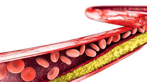 ldl cholesterol colesterol placa fett globuli reduce days ader aterosclerose formation treatment arterie rossi globules colesterolo arteria herz 3d formazione