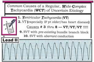 ACLS EKG Rhythm Interpretation
