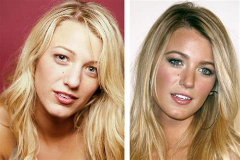 blake lively plastic surgery breast plastic surgery