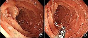 Endoscopic Findings   A  Hyperemic Mucosa And Two Blood