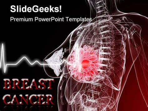 Breast Cancer Medical Powerpoint Templates And Powerpoint