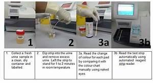 Normal Urine Test Results Chart Urine Test Portal Myhealth