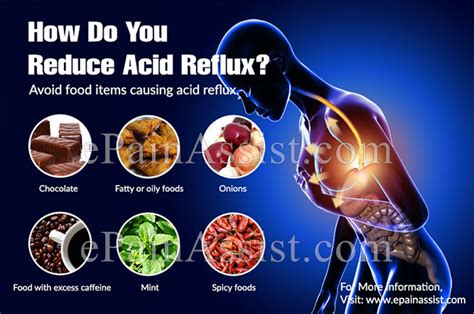 How Do You Reduce Acid Reflux?. Geek Signs Of Stroke. End Signs. Signature Drink Signs. Grand Opening Signs. Embolism Signs Of Stroke. Thrombotic Signs Of Stroke. Snapchat Signs Of Stroke. Juvenile Diabetes Signs