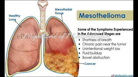 malignant pleural mesothelioma   death rate youtube