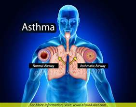 Asthma Symptoms and Treatments