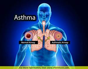 Asthma: Treatment, Home Remedies, Prevention, Symptoms