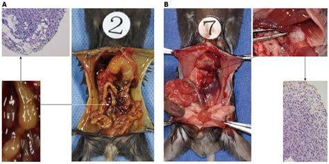 Solen: Kostní metastázy u karcinomu prostaty a ostatních