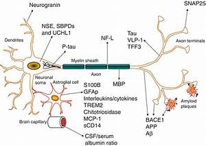 Cerebrospinal Fluid Biomarkers in Alzheimer's Disease ...
