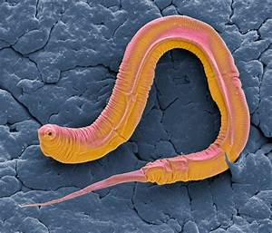 Worm Wiring Diagram May Help Us Understand Our Own Nervous