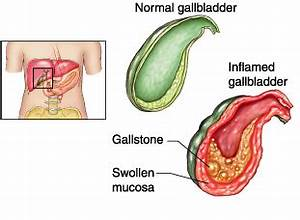 CHOLECYSTITIS SYMPTOMS AND TREATMENT – INFLAMMATION OF THE ...