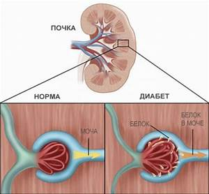 Лечение сахарного диабета у пациентов с сопутствующей патологией