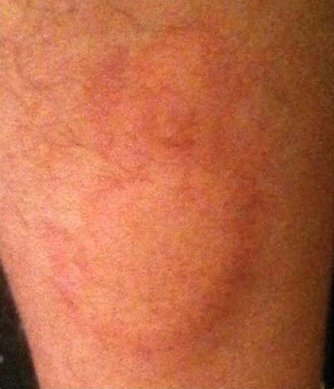 Burn to leg: full thickness lower limb burn associated ...