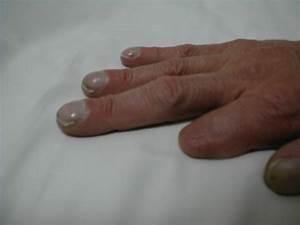 Cyanotic Nail Beds Photos