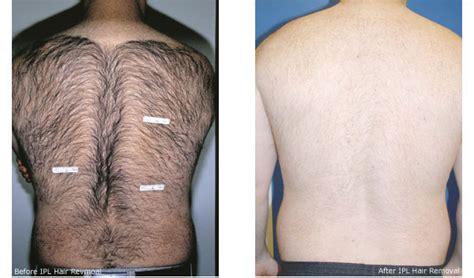 laser hair removal for light hair nyc men 39 s hair removal laser hair removal for men