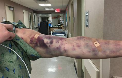 doctors baffled  mystery bug bite  left arizona man