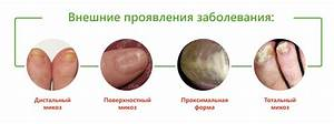 Как лечить грибок ногтей в дом условиях