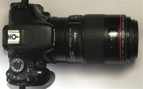 Mobile Or Dslr For Dental Photography  Best Camera For