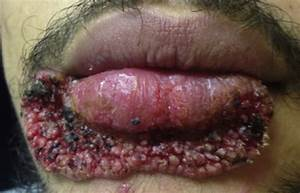 A man extracted a pimple with a carpentry blade and things
