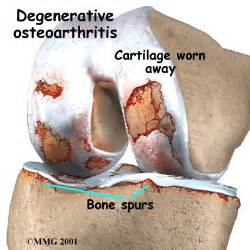 Glucosamine and Chondroitin Sulfate for Osteoarthritis of the Knee  Osteoarthritis Chondroitin