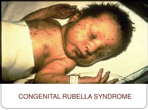 Difference in Measles and Rubella Rash