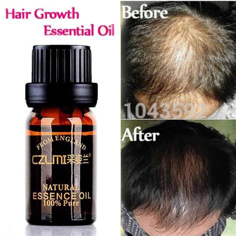 Hair Loss Products Natural With No Side Effects Grow Hair
