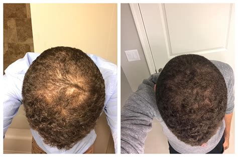 27 y/o - progress pics at 9 months of Rogaine, only