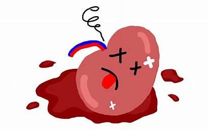 Kidney Infection Symptoms Diseases Broken Failure Renal