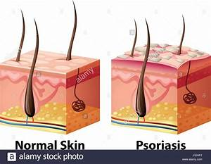 Human Skin Diagram With Normal And Psoriasis Illustration Stock Vector Art  U0026 Illustration