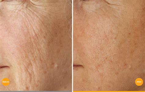 novoxel skin rejuvenation productsrejuvenation