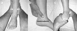 Bernese Ankle Rules  If Any Of These Clinical Examination