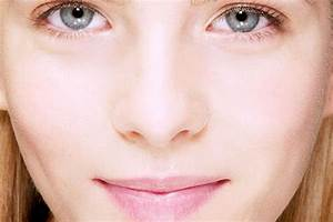 How To Stop Acne From Coming Back