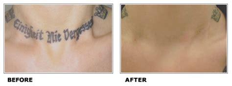 globe tattoo broadband load rates ni tattoo removal