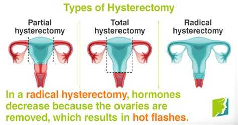 Hot Flashes after a Hysterectomy | Menopause Now