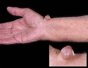 pain relief for arthritis in finger joints