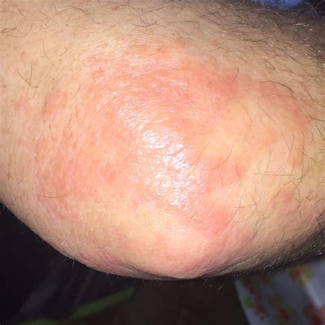 allergie hautausschlag nesselsucht durch tanne