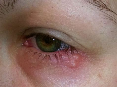 Herpes In The Eye Images Eye Herpes Pictures Symptoms And Types