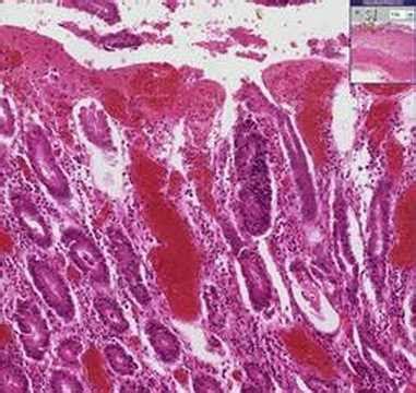 histopathology heart pericarditis bacterial doovi