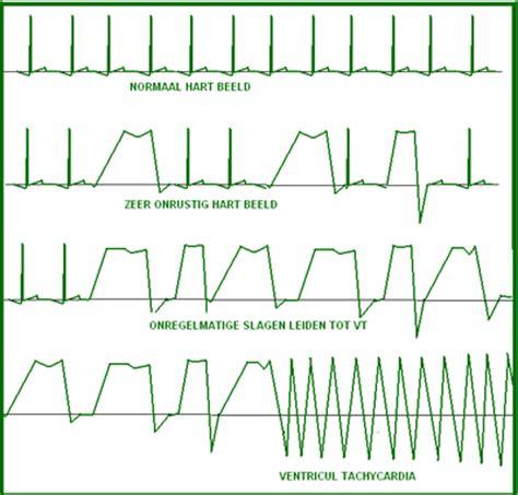 Onregelmatige hartslag na inspanning