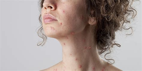 8 Signs Of Diseases Your Face May Be Trying To Tell You