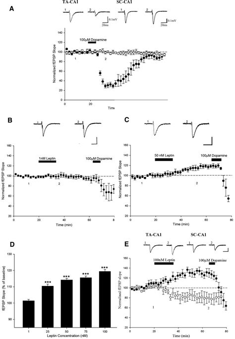 Full Form Of Nmda by Leptin Induces A Novel Form Of Nmda Receptor Dependent Ltp