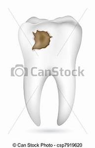 Cavities clipart - Clipground